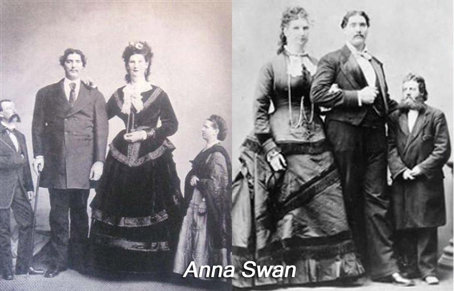 Anna Swan Largest Vagina